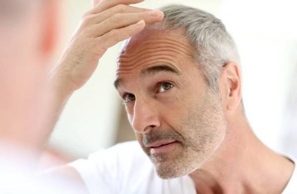 علل و درمان ریزش مو