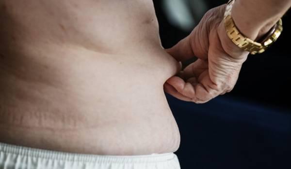 چاقی-شکم-و-پهلو (1)