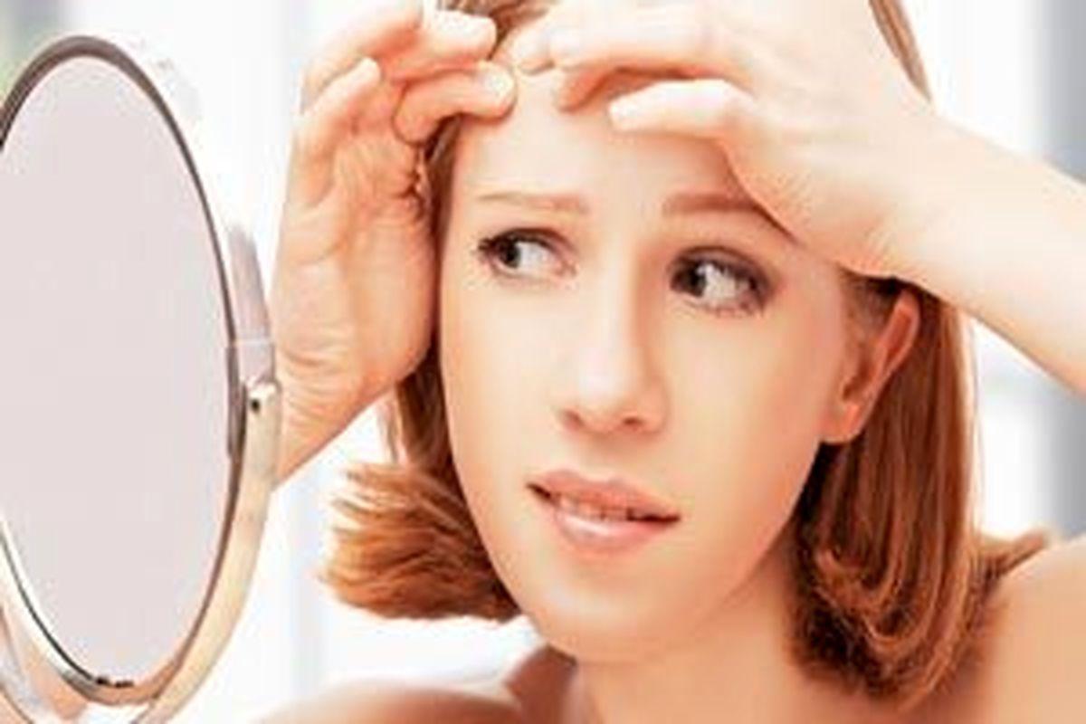 با این روش در عرض 24 ساعت جوش های صورتتان را از بین ببرید