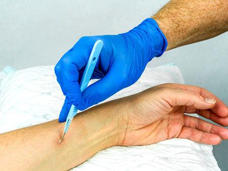 درمان و روش آبسه پوستی