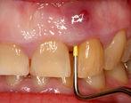 عفونت های دندانهایتان را با چه روش خانگی درمان کنید