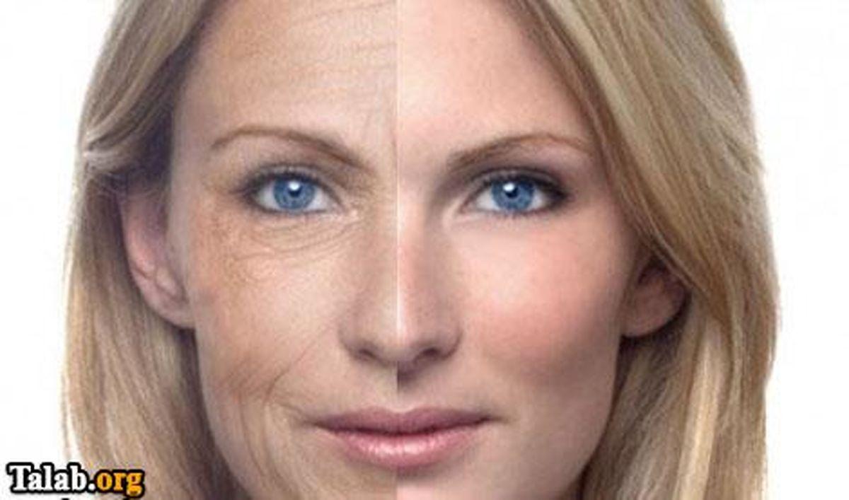 شایعترین علائم تخریب پوستتان را بشتناسید