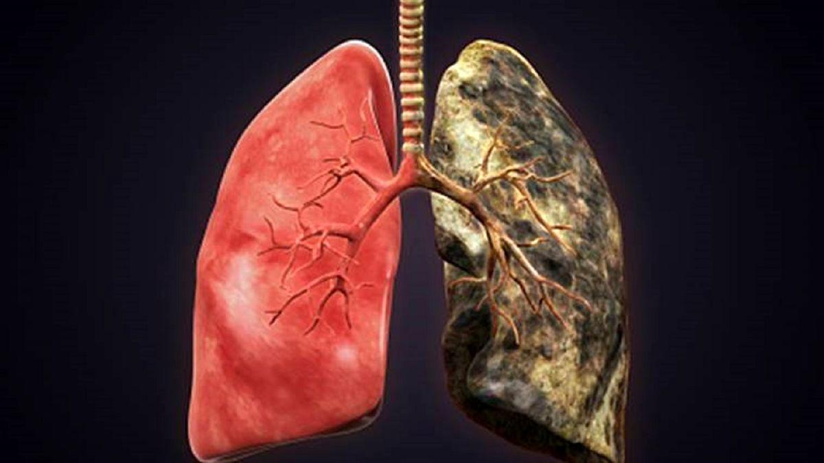این بیماری در جهان به عنوان مرگبارترین بیماری شناخته شد