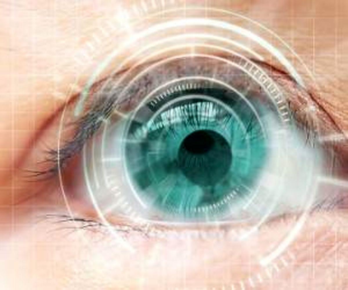 عمل لازک برای چشم بهتر است یا لیزیک ؟