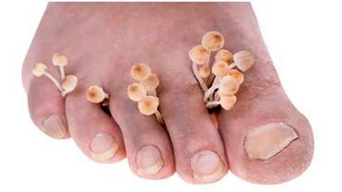 ۵ بیماری شایعی که تنها پاهایتان را درگیر می کند