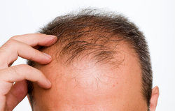 ۷ راه مؤثر در کاهش ریزش مو