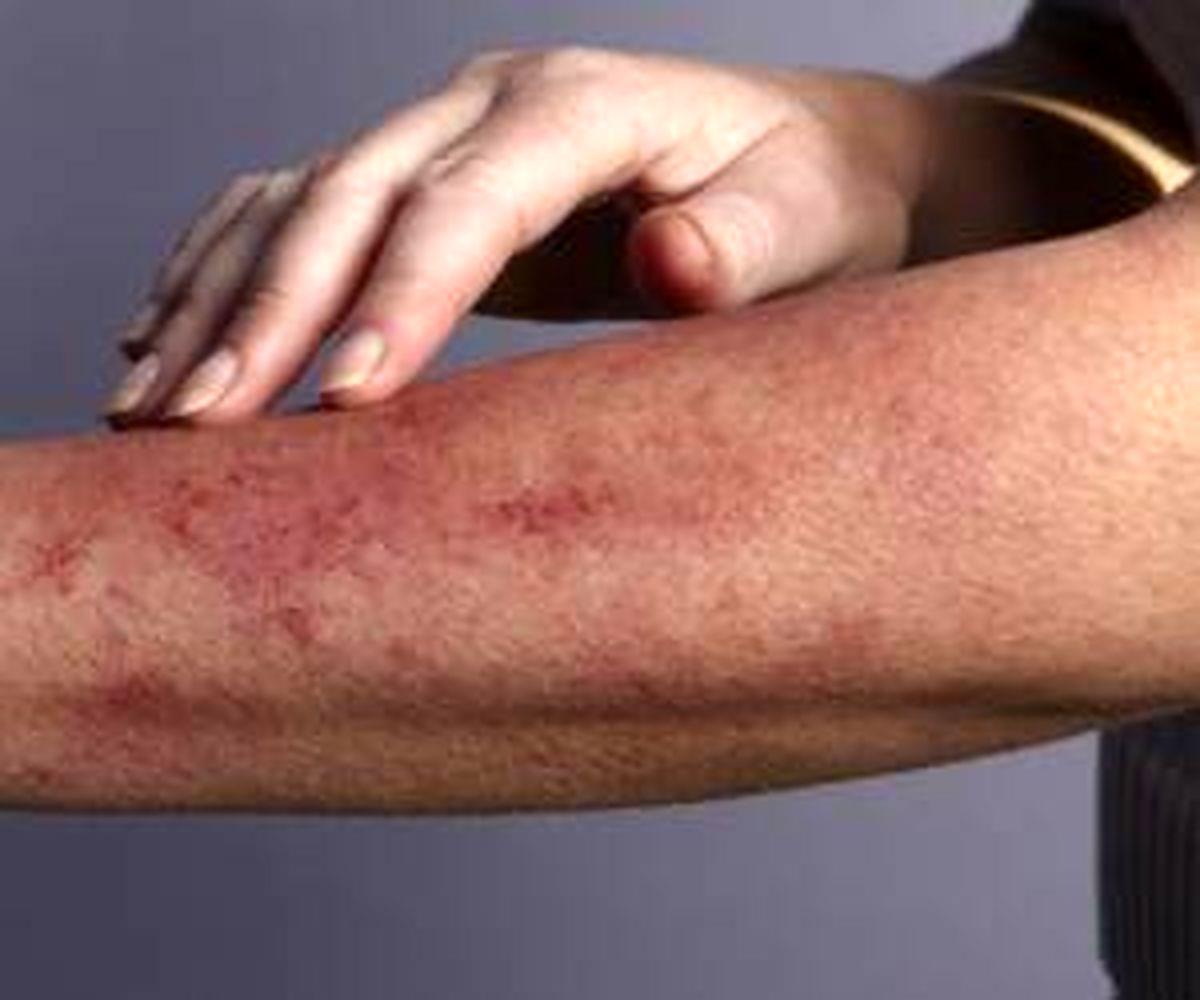 علت به وجود آمدن دانه های قرمز روی پوست چیست؟