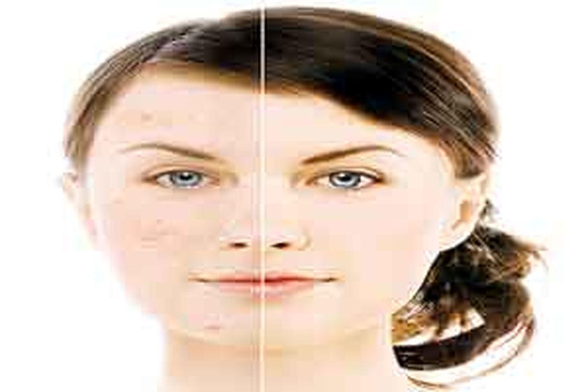 برای از بین بردن لک های صورت این روش را به کار ببرید