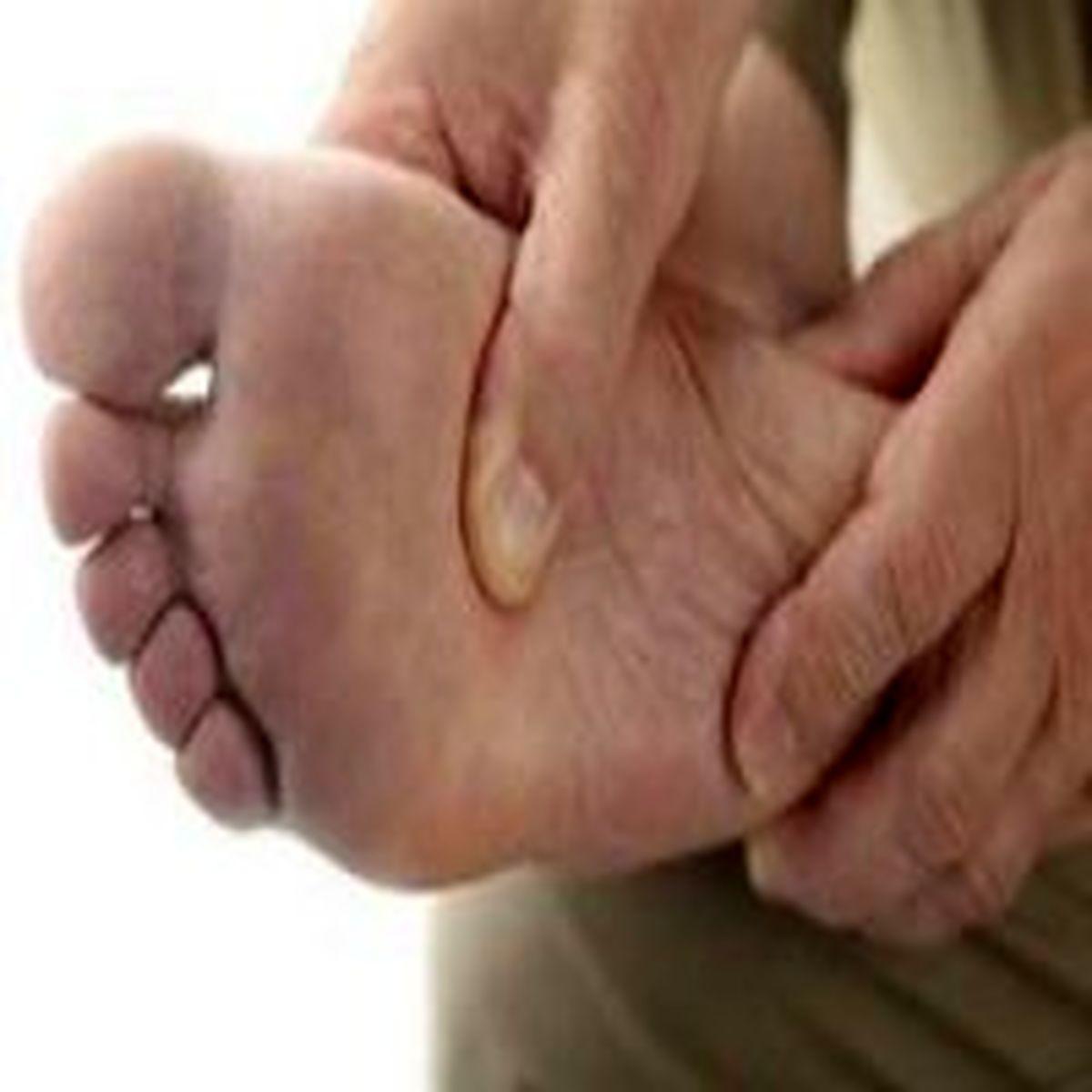 علت سردی پاها چیست ؟ + درمان