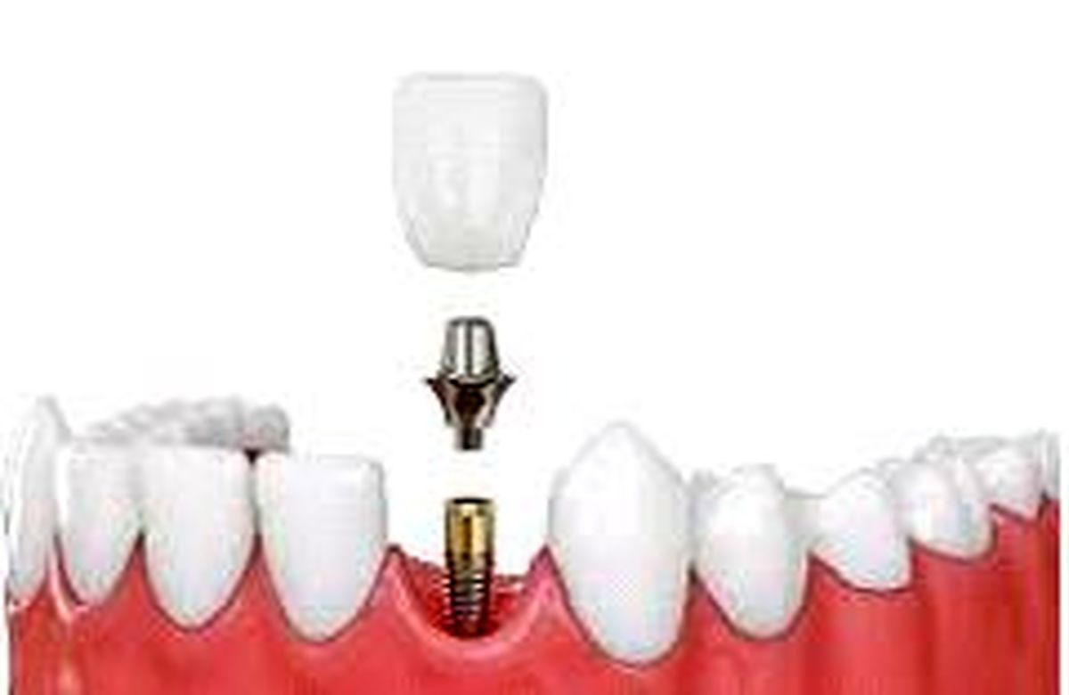 نکات کلیدی در ایمپلمت دندان را بدانید