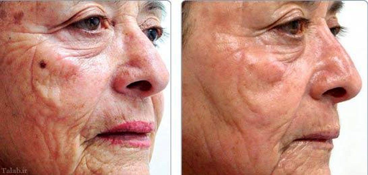 روند پیری پوستتان را با این موارد سریعتر پیش می برید