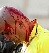 کتک خوردن داور از بازیکنان فوتبال