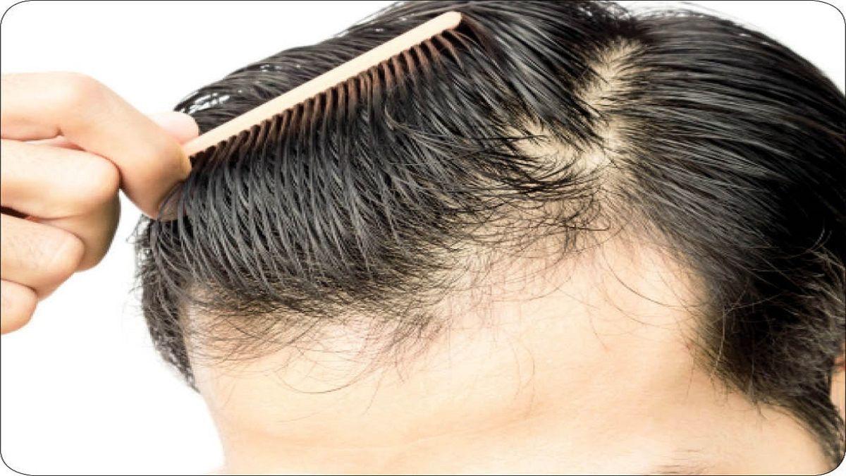 تزریق این ماده مقوی موهای فر را صاف می کند