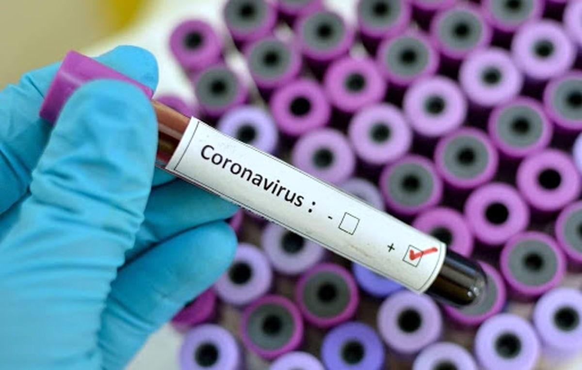 چه کار کنیم تا به ویروس کرونا مبتلا نشویم؟