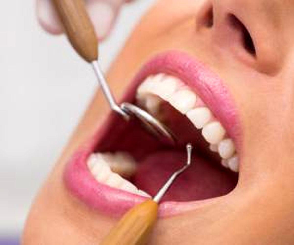 بیماری هایی که داخل دهان علامت دارند!