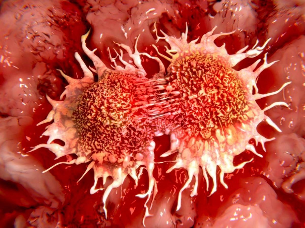 نشانههای نخست سرطان را بشناسید