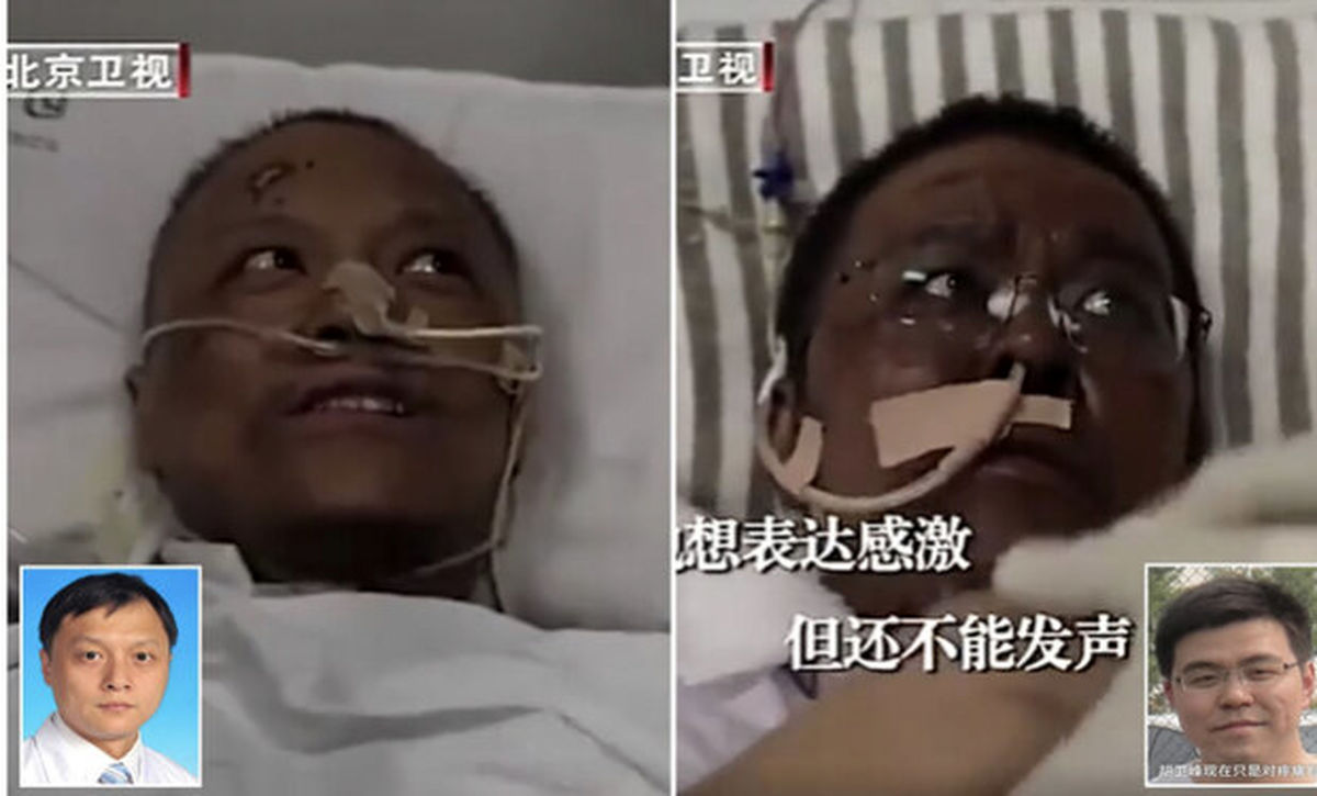 تیره شدن رنگ پوست دو چینی مبتلا به ویروس کرونا