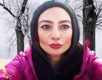 عکس های لورفته از عمل های زیبایی یکتا ناصر + عکس قبل از عمل