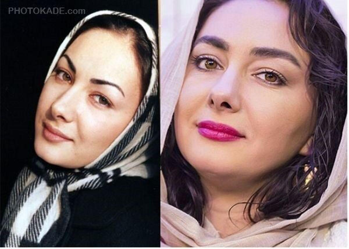 چرا هانیه توسلی بازیگر زخم کاری ازدواج نمی کند؟   بیوگرافی هانیه توسلی
