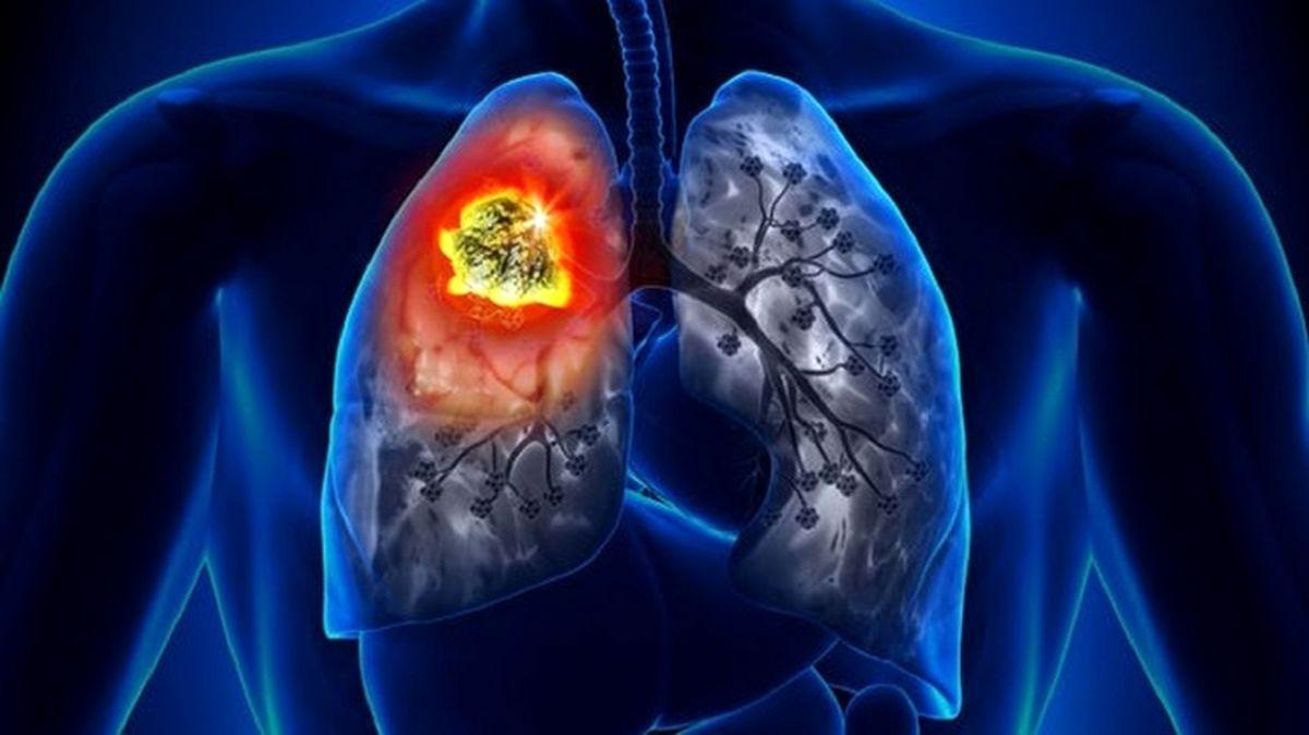 کشف عجیبترین علامت ابتلا به سرطان ریه