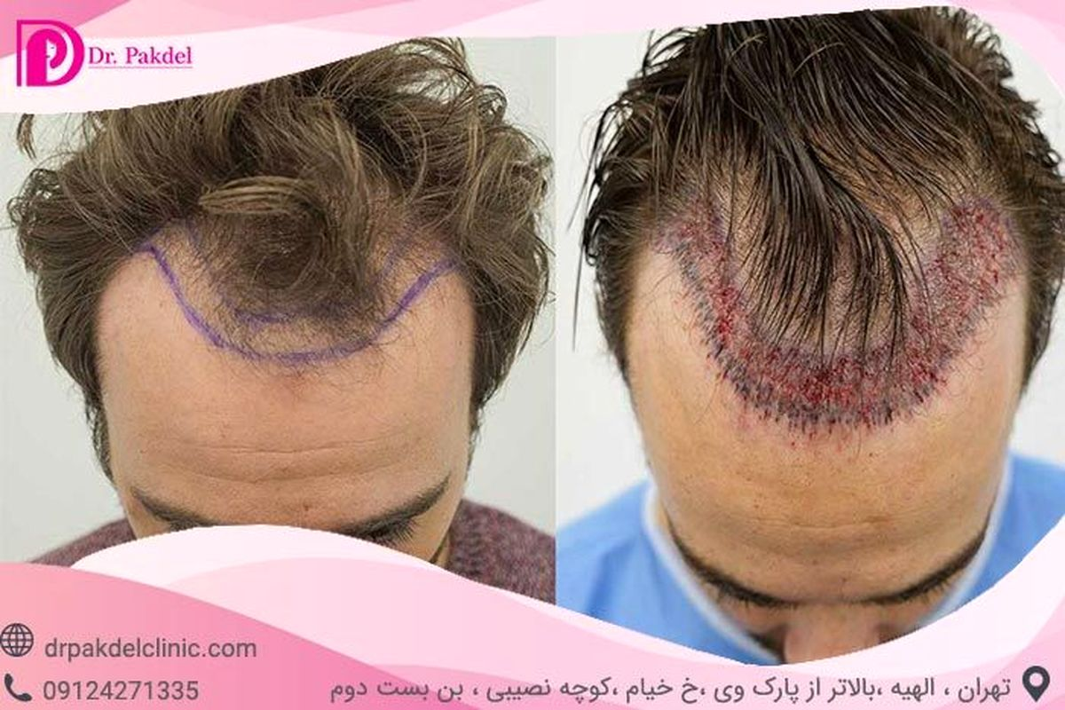 کاشت مو چگونه انجام می شود؟ انواع روش ها,عوارض