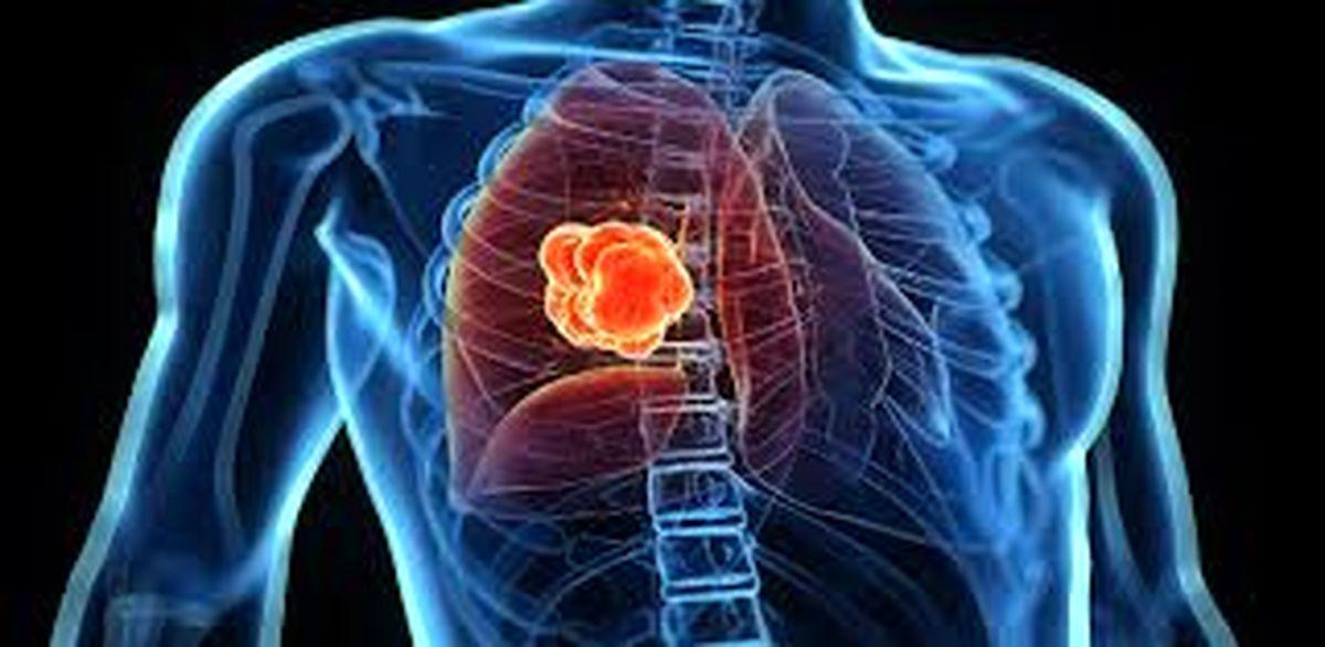 ۵ علامت سرطان ریه