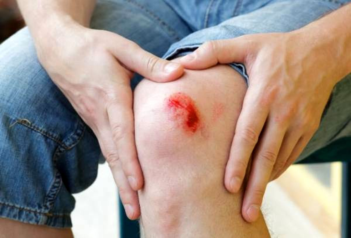 ۱۵ روش تضمینی خانگی که زخم هایتان را درمان می کند
