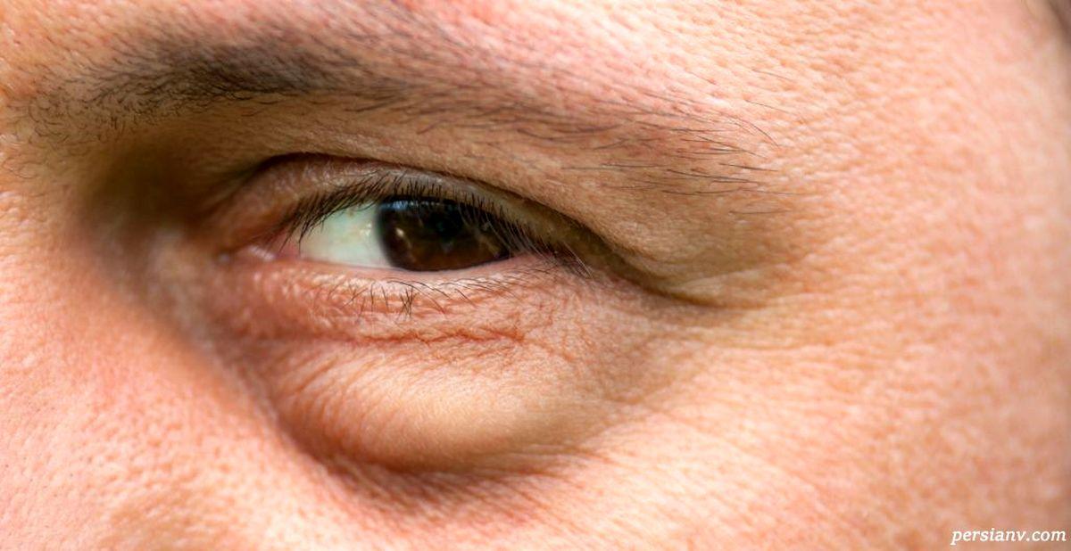 پف زیر چشم را با این سه روش آسان از بین ببرید