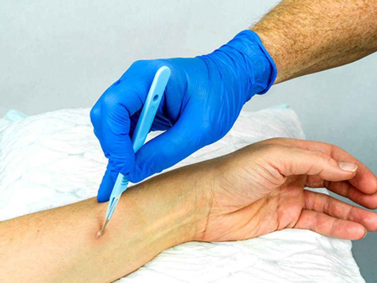 آبسه پوستی چیست؟ +درمان