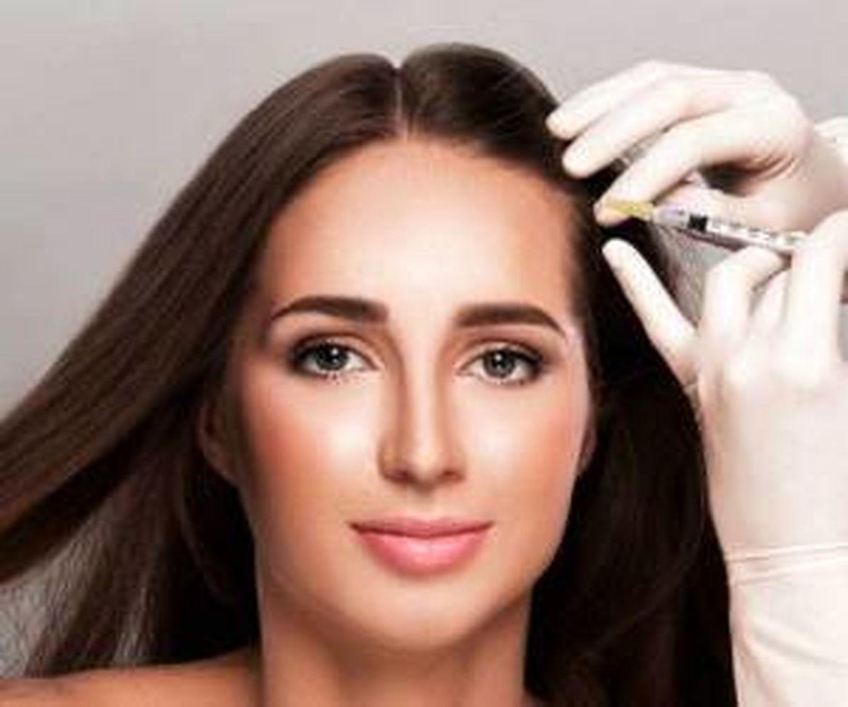 چگونه می توان با مزوتراپی از ریزش مو جلوگیری کرد؟