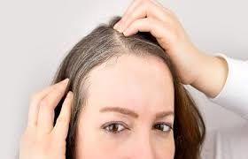 چرا موها در جوانی و قبل از رسیدن به میانسالی سفید می شود؟