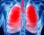 5 دمنوش شگفت انگیزی که ریه تان را پاکسازی می کند!