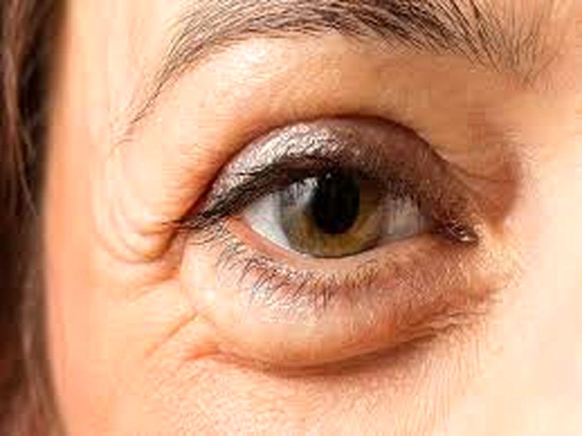 با این 17 روش خانگی پف زیر چشم تان را نابود کنید