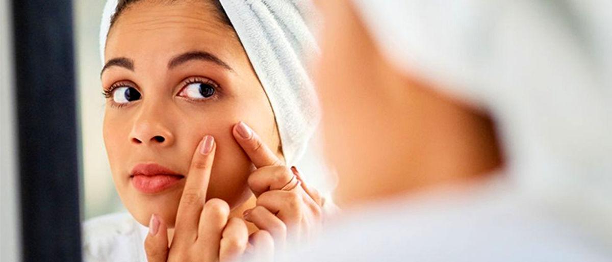 بیماری هایی که جوش های صورتتان فاش می کنند
