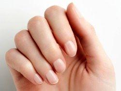 لکه های سفید ناخن نشانه چیست؟
