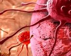 درمان قطعی دو سوم سرطانها در ایران