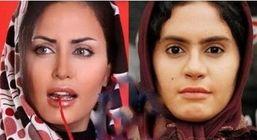 بازیگران زن ایرانی که با عمل زیبایی تغییر زیادی کردند + عکس