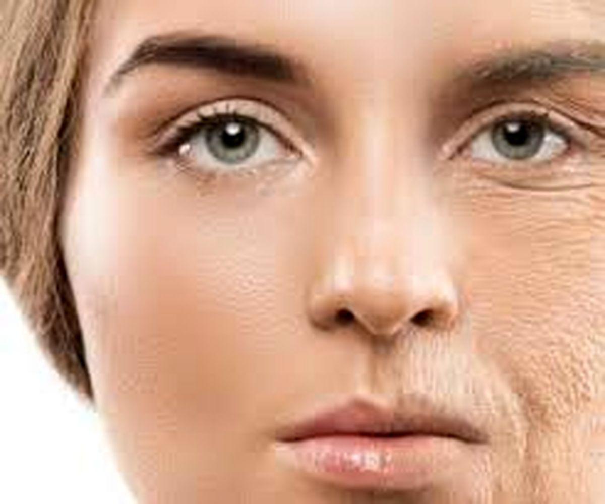 رفع کامل افتادگی پوست بعد از رژیم غذایی