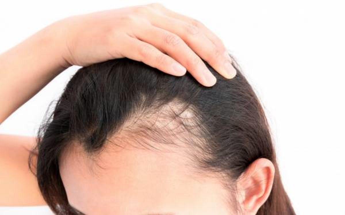 از تاثیرات غدد بدن بر ریزش مو چه می دانید؟
