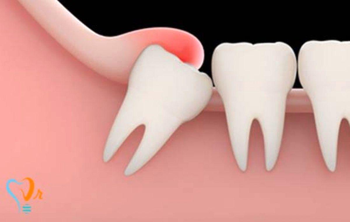 مناسبترین زمان کشیدن دندان بی عقل؟