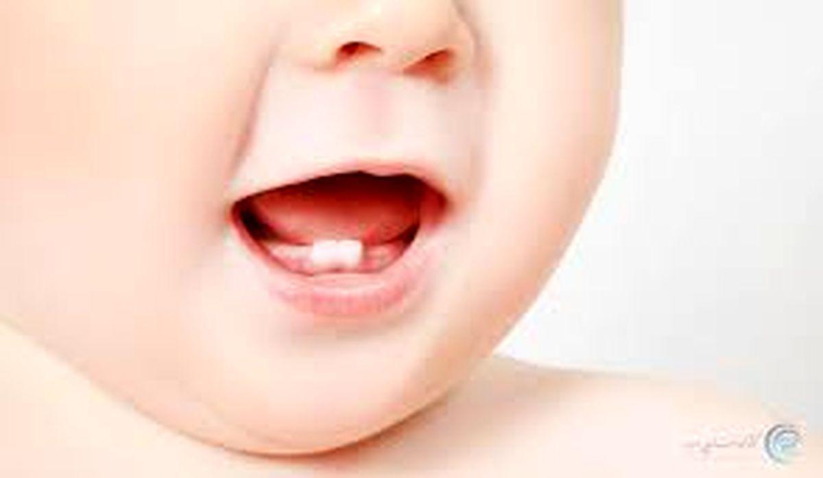 ژل دندان برای نوزادان مفید است یا مضر ؟