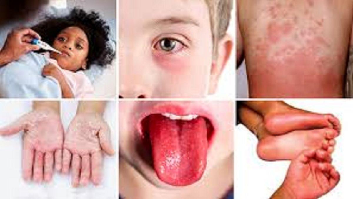 رعب آورترین علامت ابتلا به کرونا در کودکان