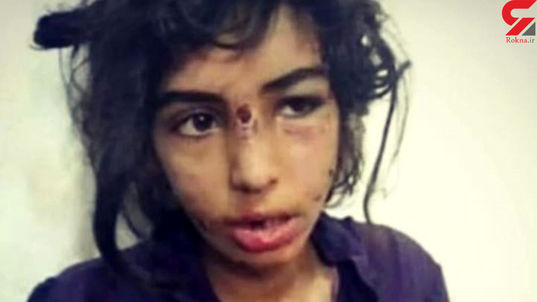 نامادری بی رحم دختر جوان را به طرز فجیعی مورد شکنجه قرار داد + جزئیات