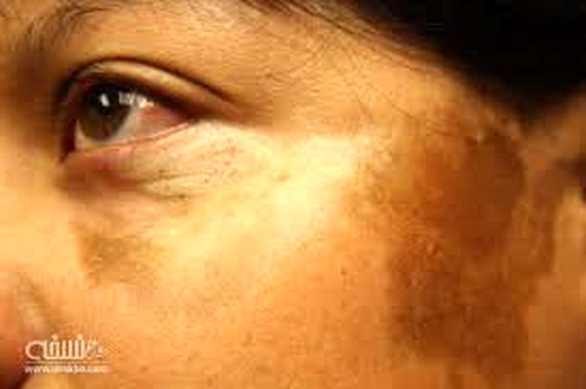 بیماری پوستی مورفه آ چیست؟