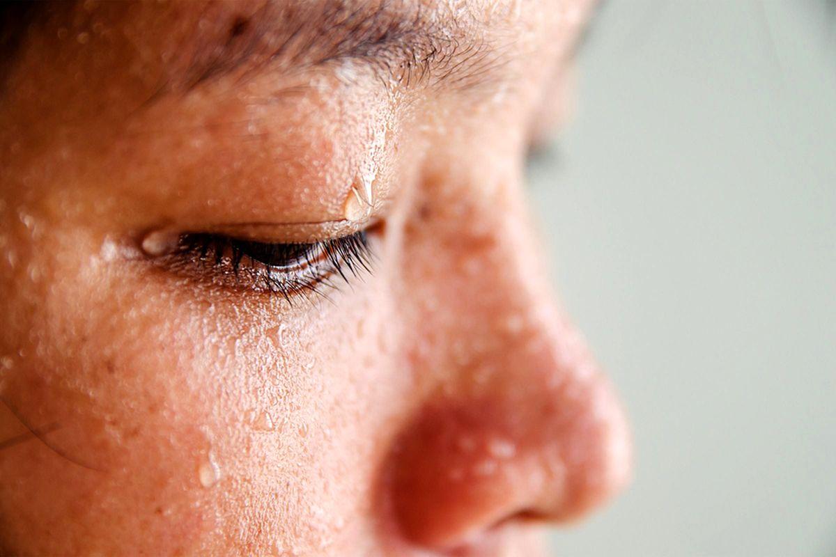 علل عرقسوز شدن+درمان